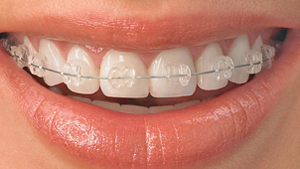 Ceramic-Braces Greater Houston Orthodontics Houston TX