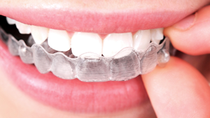 Invisible Braces Greater Houston Orthodontics Houston TX