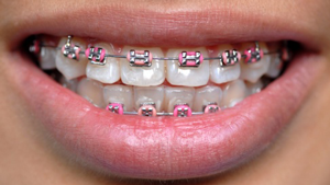 Metal Braces Greater Houston Orthodontics Houston TX
