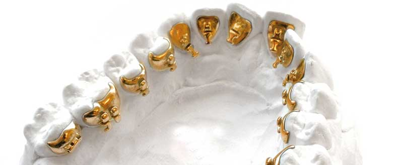 Greater-Houston-Orthodontics-Incognito