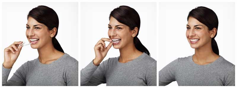Greater-Houston-Orthodontics-Invisalign-costs
