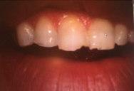 Grinding teeth Houston TX