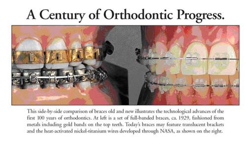 Orthodontics evolution Greater Houston Orthodontics Houston TX