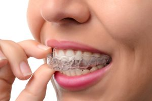 Invisalign for a Holiday gift Houston TX