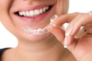 Orthodontic retainers Houston TX