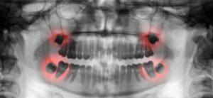 wisdom teeth houston tx