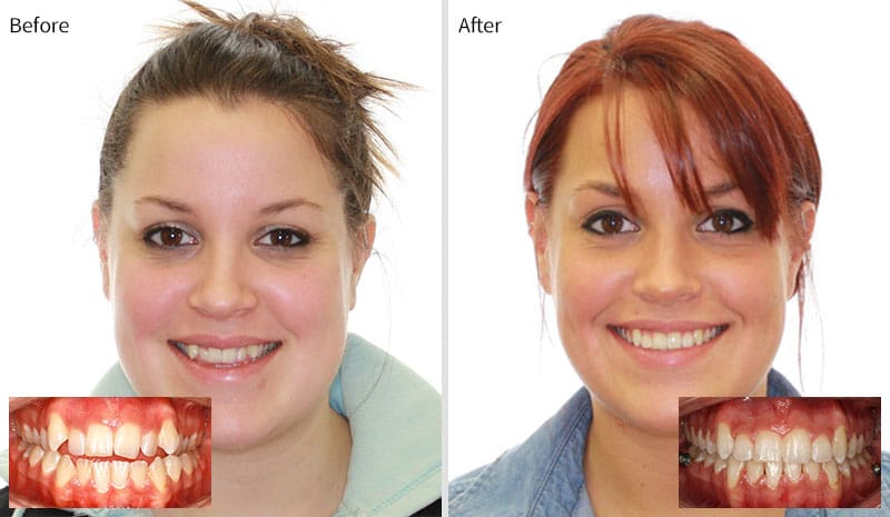B&A 1 Greater Houston Orthodontics in Houston TX