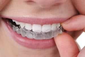 placing clear aligner in mouth
