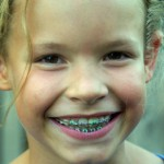 Greater Houston Orthodontics HOuston TX Early Treatment